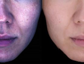 顔しみチェッカーでしみ原因範囲を顔画像からわかりやすく表示する