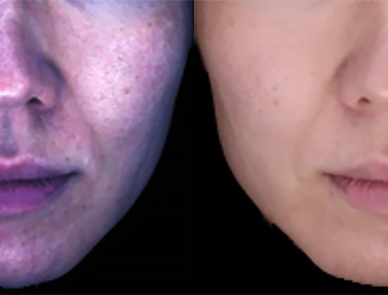 顔画像を選択するだけでコントラストなどを自動調整して顔のしみ部分が見やすくなる